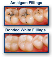White Dental Fillings Oakland CA