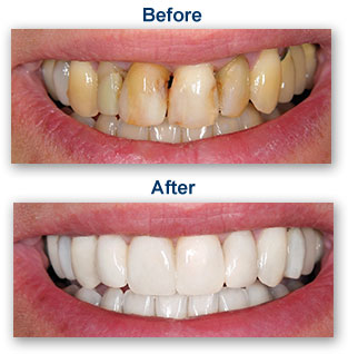 Cosmetic Dentistry Oakland CA